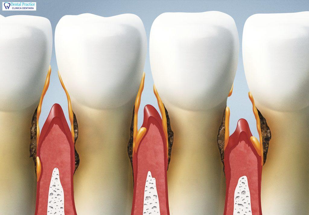 Sânge din gură: nu ignorați niciodată - Tratament November